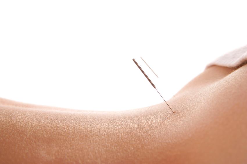majorstuen fysioterapi og akupunktur